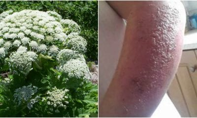 Hogweed burns