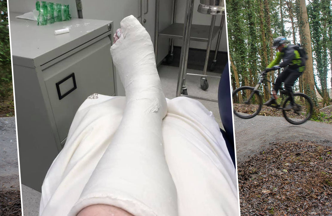 gosford broken toe